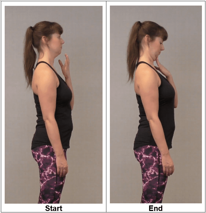 Women showing the difference in neck retraction