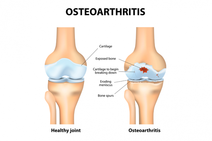 A picture showing the difference between a health joint in the human body and comparing to a joint that suffers from Osteoarthritis