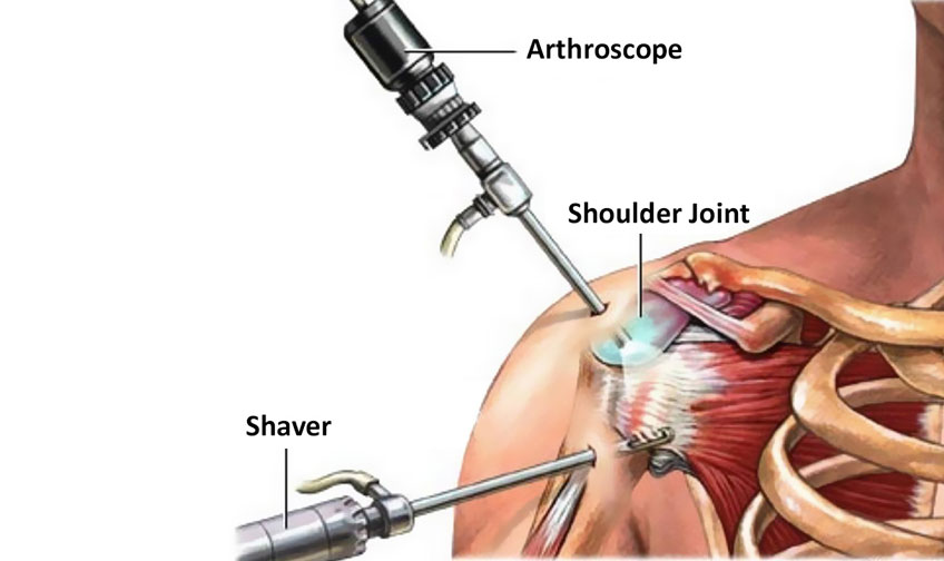 A graph showing the use of shoulder arthroscopy